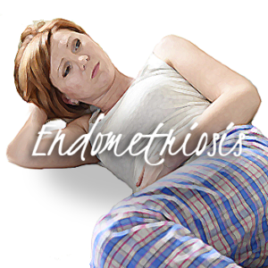 endometriosis flint